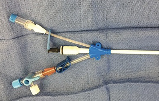 Erroneous Placement of Antimicrobial-Impregnated Central Venous Catheter in  a Patient Susceptible to an Allergic Reaction - Anesthesia Patient Safety  Foundation