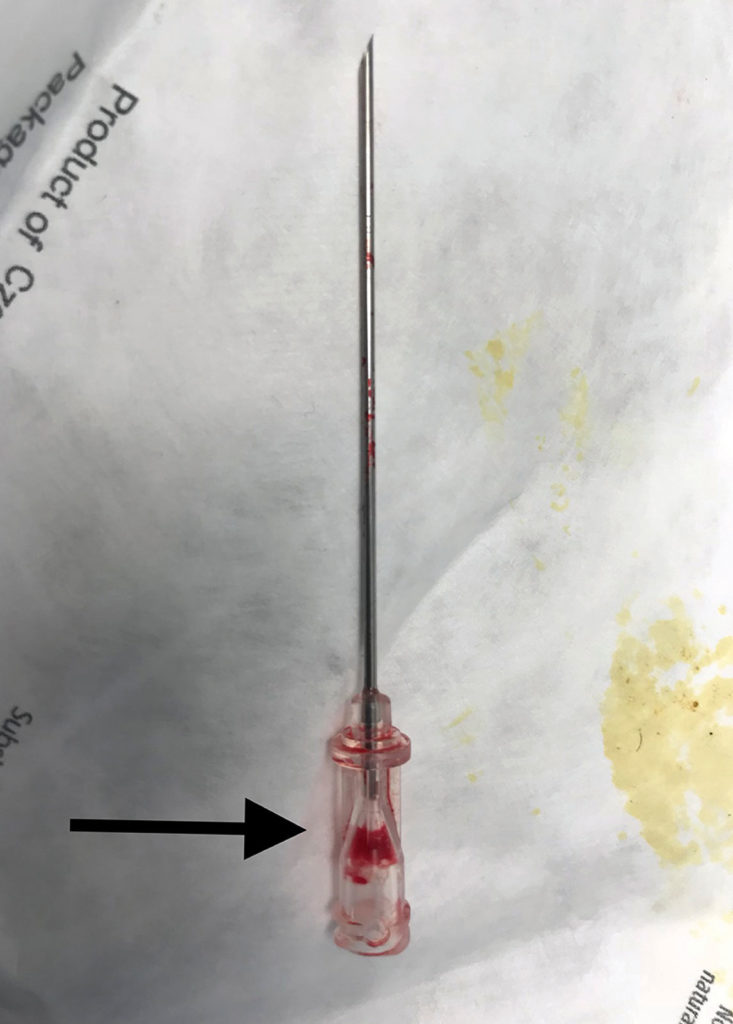 Figure 2. This figure depicts the 18 gauge introducer needle with a defect in the hub resulting in an inability to aspirate fluid. Arrow points to hub defect location.
