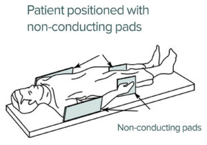 Figure 2. Depicts where nonconducting pads can be placed to reduce the risk of MRI-related burn. Figure 2 is an extract from a GE Healthcare MRI Operator Manual addressing patient padding. Reproduced and modified with permission from GE Healthcare.