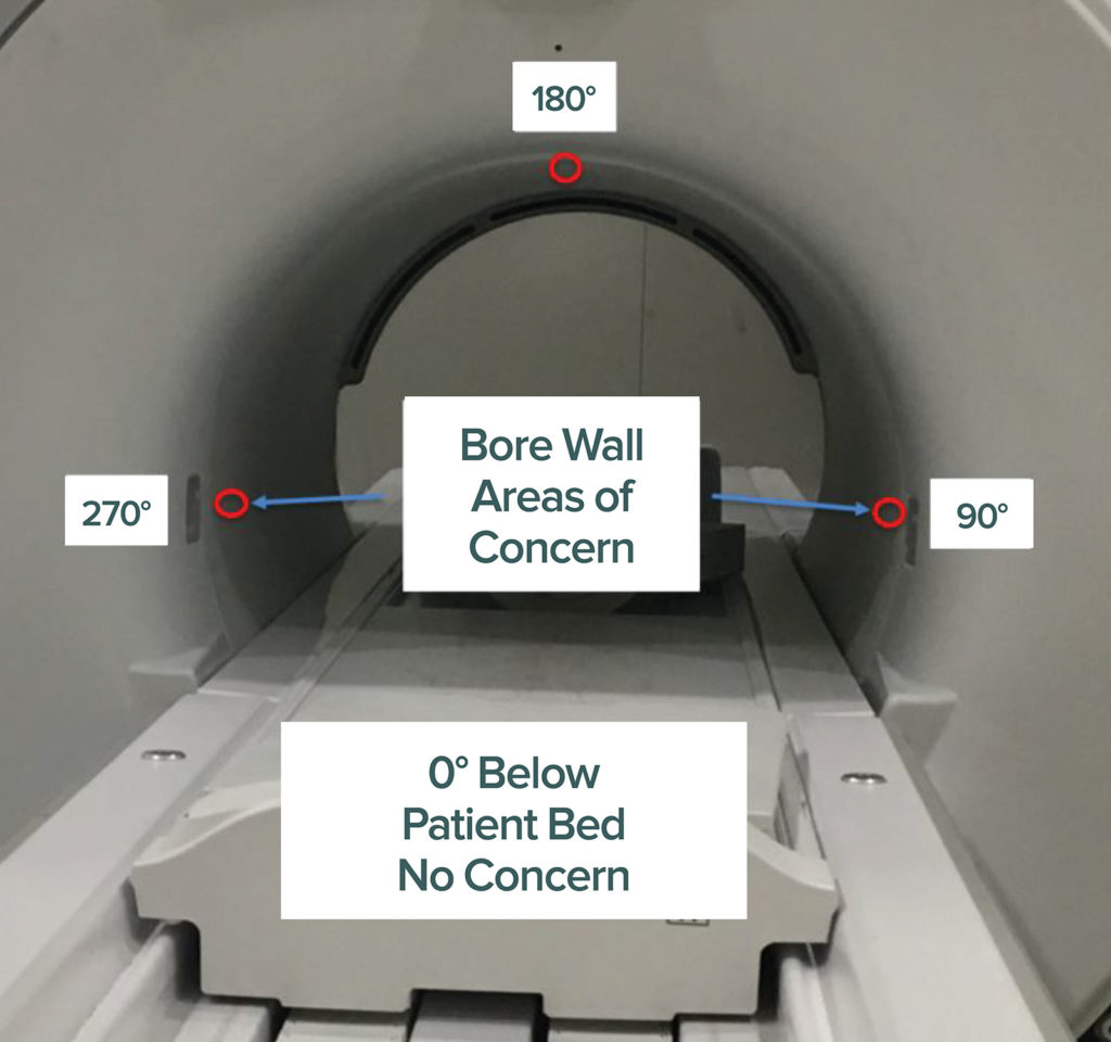 Figure 3. Depicts the particular areas where patients may be at increased risk for burn in MRI.<br /> Reproduced and modified with permission from GE Healthcare.