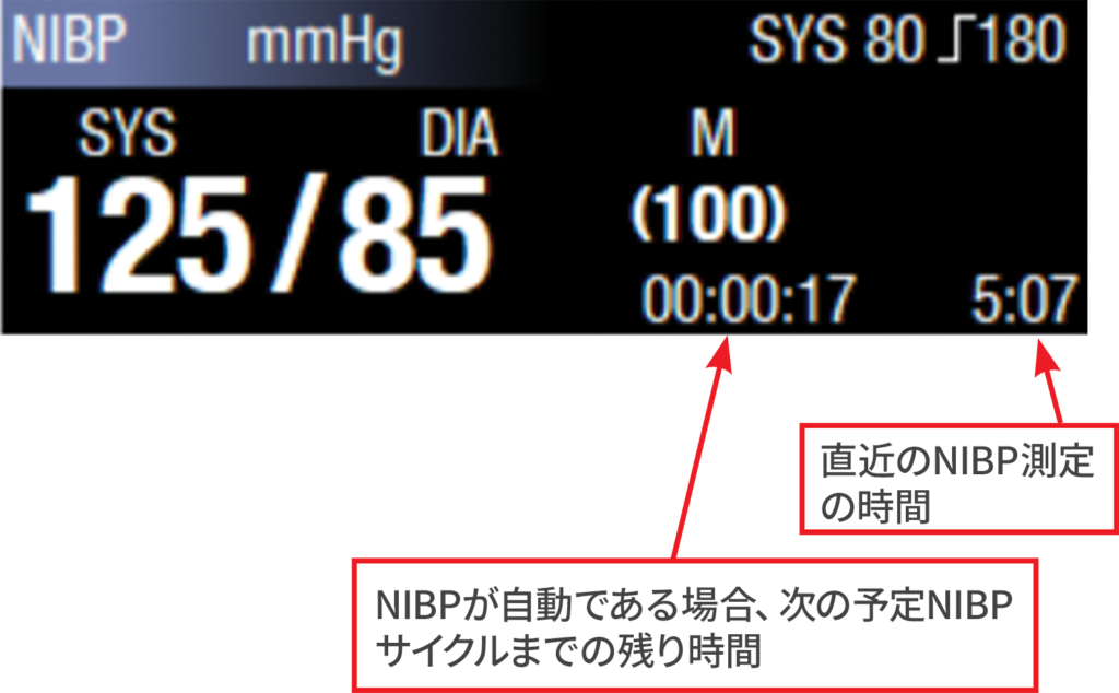 図5:NIBPのタイムスタンプと次のサイクルまでのカウントダウン。