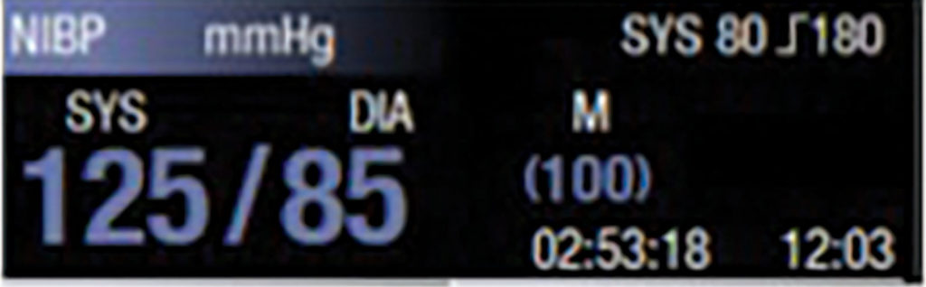 "NIBP display with ""greyed-out"" white text.<br><br>Figure 1: Example NIBP display text showing color change once the NIBP value becomes aged—e.g., 30 or 60 minutes depending on monitor configuration."