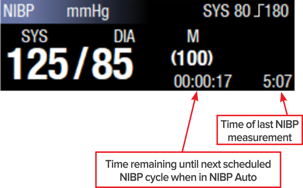 Figure 5: NIBP time stamp and countdown until next cycle.