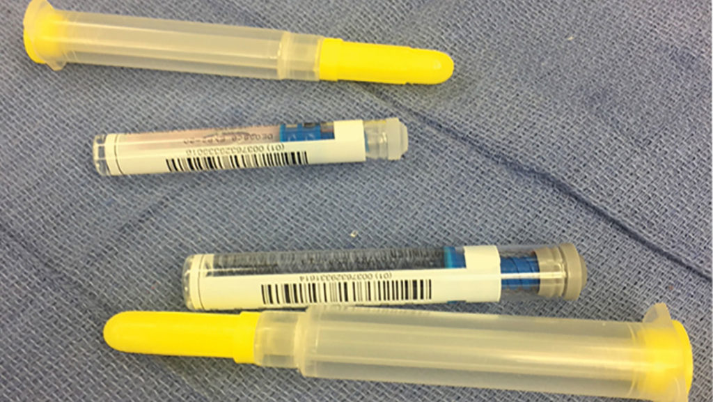 Figure 1B: Depicts the back labeling of the 2% lidocaine and epinephrine 0.1 mg/ml syringes. Note the similarity between the syringes.