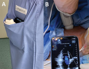 Figure 1: Extreme portability afforded by portable ultrasound devices (Panel A) and use of PPOCUS in perioperative settings such as in the operating room (Panel B).