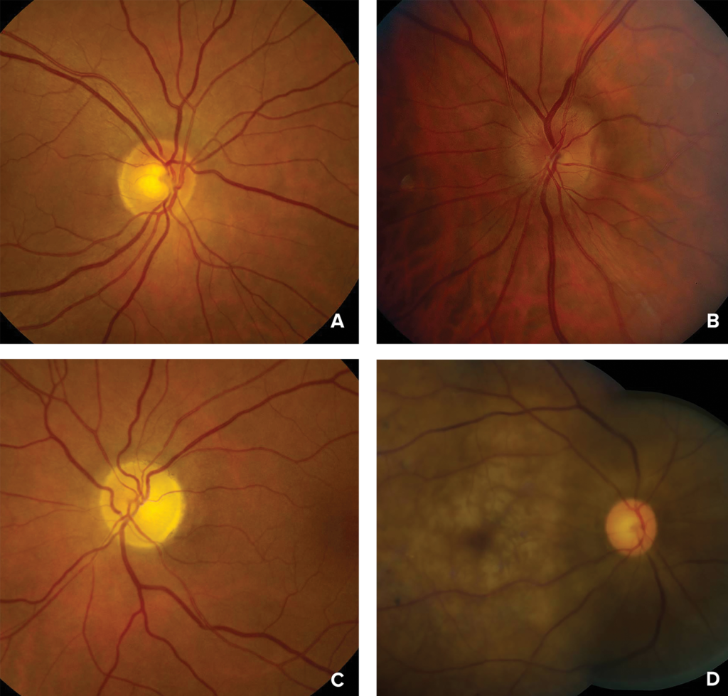Figure 1: Photographs of the ocular fundus showing A) normal optic disc or early posterior ischemic optic neuropathy; B) mild disc swelling in early anterior ischemic optic neuropathy; C) optic nerve atrophy in late anterior or posterior ischemic optic neuropathy; and D) retinal whitening, cherry red spot (macula) and attenuated arteries in acute central retinal artery occlusion.<br />Photographs courtesy of Valerie Biousse, MD, and Nancy J. Newman, MD, Emory University School of Medicine, Atlanta, GA.