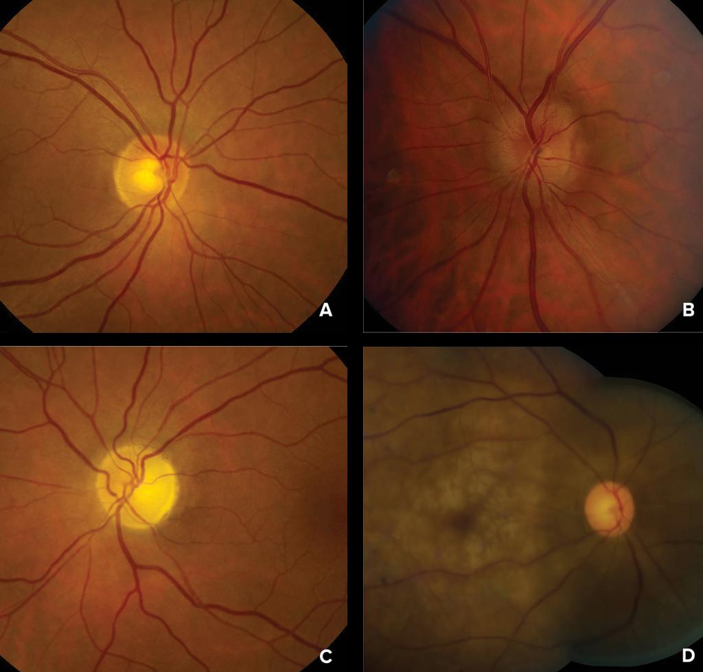 图 1:眼底照片显示 A) 正常视神经盘或早期眼球后缺血性视神经病变;B) 早期眼球前缺血性视神经病变中的轻度视神经盘肿胀;C) 晚期眼球前或眼球后缺血性视神经病变中的视神经萎缩;以及 D) 急性视网膜中央动脉阻塞中的视网膜变白、樱桃红斑点(黄斑)和变性的动脉。<br />照片由埃默里大学医学院(加州、亚特兰大)的 Valerie Biousse(医学博士) 和 Nancy J. Newman(医学博士) 友情提供。