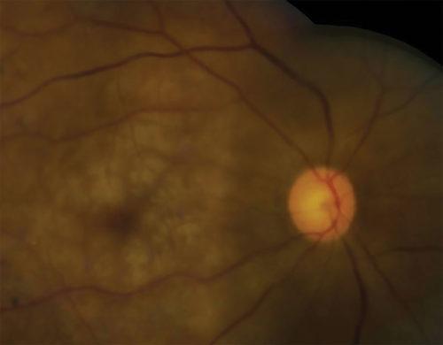 Perioperative Vision Loss