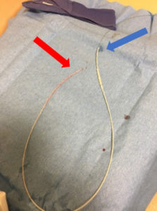 Figure 3 – Lumbar drain catheter containing guidewire after removal from patient. Guidewire and catheter are aligned at proximal end (red arrow). Catheter is contracted along wire at distal end (blue arrow).