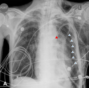 <strong>A.</strong> Immediate post-operative AP view. Endotracheal tube in place, with tip above the carina. Left chest tube with suction applied, with tip properly projecting over the medial aspect of the left upper lung (red arrow). Moderate-sized left pneumothorax (white arrows) with some mass effect and mild shift to the right side; extensive subcutaneous emphysema present.